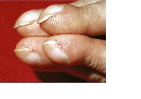 clubbing finger | Medical Pictures Info - Health