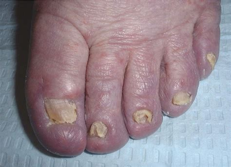 Onychomycosis: Current Trends in Diagnosis and Treatment