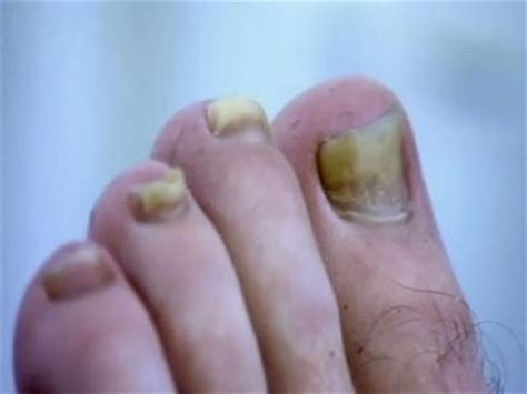 Nail psoriasis photos on the hands