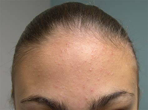 Medical Pictures Info – Acne Type