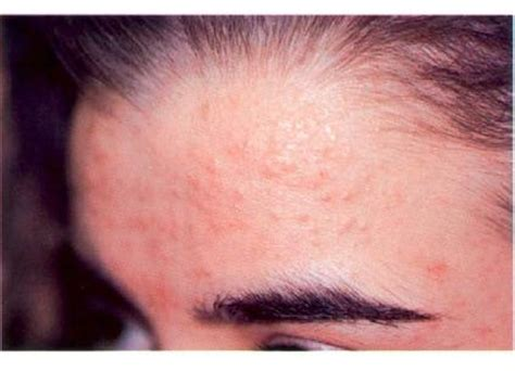 Medical Pictures Info – Flat Warts