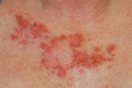 Medical Pictures Info – Skin Cancer Moles
